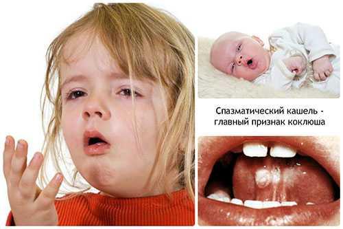 как обнаружить коклюш у детей: симптомы